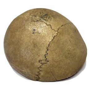 Vintage Human Skull Cranium Bone -Biological Skeleton Specimen Axial Plane
