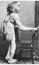 Photo. 1880s. Rear View of Elephant Man - Joseph Merrick