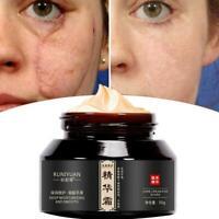 50ml Acne Scar Stretch Marks Remover Cream Smoothing Essence Cream