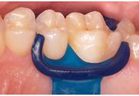 DMG MiniDam Gingival Guard Silicone Rubber Dam Dental Rubber Dam 20pcs Genuine