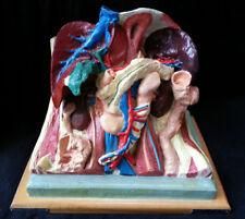 PIECE UNIQUE Modèle Anatomique BUSTE ECORCHE Dr AUZOUX Coll. NICOLAS AUGIER ROUX