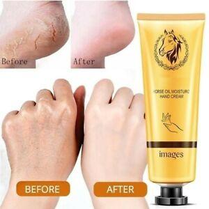 🇬🇧UK Hand Cream Anti Aging Skin Hyaluronic acid Glycerin Moisturise Cream 30g
