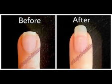 AMAZING RESULT STRONG Nail growth Serum Growth Treatment FAST LONG NAILS 12 ml