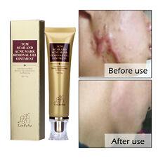 Lanbena 30g Scar Burn Stretch Mark Pockmark Reduce Removal Gel Smooth Repair
