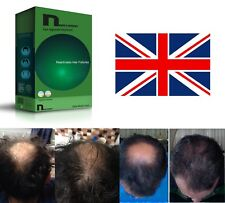 Northman Hair Loss Treatment Regain Regrowth Thickening European Post Refill UK