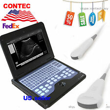 Digital Portable Laptop B-ultrasound Scanner Machine,CONTEC,Convex,Micro convex