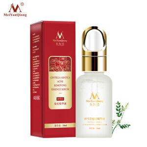 Centella Acne Removing Essence Face Serum Moisturizing Anti Wrinkle Meiyanqiong