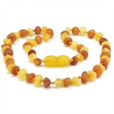 Baltic Baby Teething Necklace Anti Flammatory Drooling Reduce Pain Baroque Beads