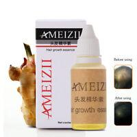 AMEIZII Hair Growth Essence Hair Loss Liquid 20ml dense hair fast sunburst