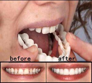 Silicone Tooth Orthodontic Braces Simulation Braces Dental Fake Teeth Straight
