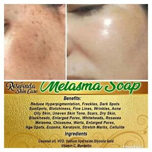 Melasma Soap Whitening Dark Spot Hyperpigmentation Freckles More 100% Effective