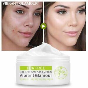 Treatment Acne Face Cream Whitening Moisturizing Facial Skin Care Shrink Pores