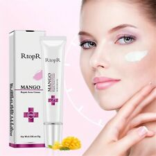 RtopR mango repair acne cream Pimple Treatment fectively
