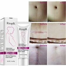 Mango Remove Pregnancy Scars Acne Cream Stretch Marks Treatment Maternity Repair