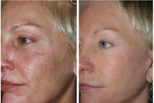 Anti Aging SkinCare Kit for Aging Skin Cleanser Serum Toner Moisturizer Peel