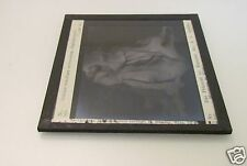 Glass Magic lantern slide HUMAN HEAD AUTOPSY DATED 1911 . MACABRE MEDICAL NO1