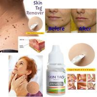 Skin Tag Remover Remover Skin Tag 10ml