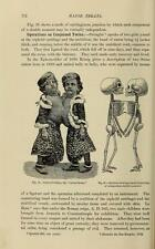 BIZARRE HUMAN DEFORMATIES 25 old medical books freaks RARE DISEASES birth defect