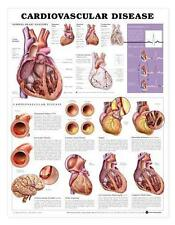 Cardiovascular Disease Chart/Charts/Models Anatomical