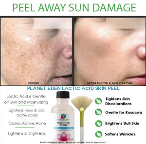 88% Lactic Acid Skin Face Chemical Peel Exfoliator - Clinical Results From Home