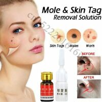 Mole & Skin Tag Removal Solution Painless Mole Skin Dark Spot Removal Face Wart