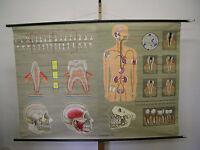 Wandbild Gebiss Zähne Karies Zahnarzt 168x116 vintage tooth doc wall chart ~1970
