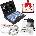 CE, CMS600P2 Laptop macchina ecografo, sistemi diagnostici, 7,5MHz Lineare sonda
