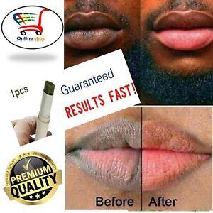 Lips Pink Fresh Fast Lightening Bleaching Cream Balm Treatment Remove Dark Lips