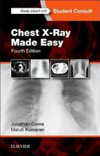 Chest X-Ray Made Easy 4th International Edition