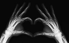 Framed Print - Funny X-Ray Love Heart Hands (Picture Poster Medical Anatomy Art)