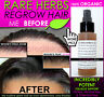 ORGANIC HAIR REGROWTH TREATMENT MEN & WOMEN HAIR LOSS TREATMENT NATURAL & FAST