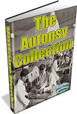 AUTOPSY COLLECTION - 50 RARE BOOKS ON DVD - post mortem,pathology,death,anatomy