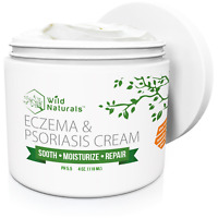 Wild Naturals Eczema Psoriasis Cream - for Dry, Irritated Skin, Itch Relief, and