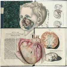 Froriep: Pathologisch-anatomische Abbildungen, Charité, Berlin, kol. Kupfer 1836
