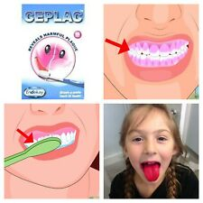 Ceplac Dental Disclosing Tablets Reveals Shows Harmful Plaque Kids Teeth Clean
