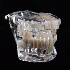 Dental Implant Disease Teeth Model Restoration Bridge Medical Science Teaching