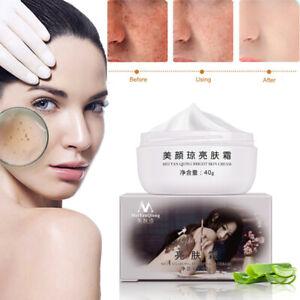 Anti Aging Dark Spot Remover Skin powerful Whitening Face Care Cream