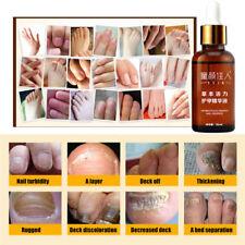 Fungal Nail Treatment Essence Repair Toe Nail Finger Anti Fungus Infection 30ml