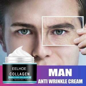 Men Face Cream Hyaluronic Acid Serum Moisturizing Oil-control Hot Whitening O4Y5