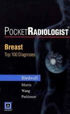 PocketRadiologist Breast - 100 Top Diagnoses Print Version (Paperback) (English)