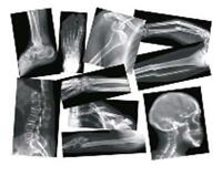 Roylco Broken Bones X-ray - Theme/subject: Radiology - Skill Learning: Anatomy -