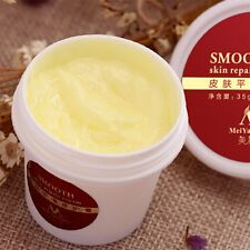 Smooth Skin Cream For Stretch Marks Scar Removal for Maternity Skin Repair GT
