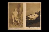 Impresión En Marco Victoriano Era Circo Monstruos Humanos Rarezas Raro Fotos