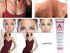 NEW STRONGER EFFECT ACHROMIN Cream - SKIN WHITENING CREAM WITH UVB - 45 ml best