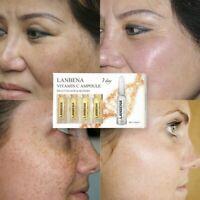 LANBENA Vitamin C Ampoule Serum Whitening Remover Freckle Speckle Fade Dark Spot