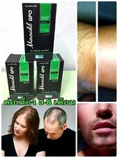 Minoxidil-Gpo 2% Reduce hair loss, create new hair for men and women