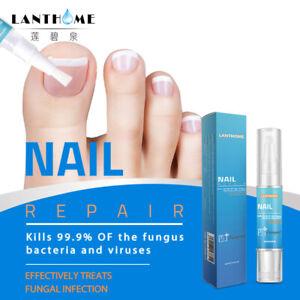 Nagelpilz Stift Anti Nagelpilz Behandlung gegen Nagelpilz Nagelpflege 4 ml