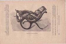 Ancienne gravure médicale 129 - Médecine pratique - Fauteuil pour examen