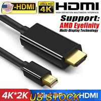 1.8M Mini DP Display Port Thunderbolt 2 to HDMI Cable Adapter For MacBook Pro US