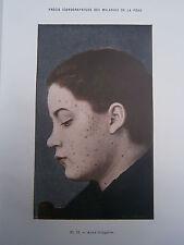 Gravure médecine couleur 1900 maladie de la peau : ACNE VULGAIRE
